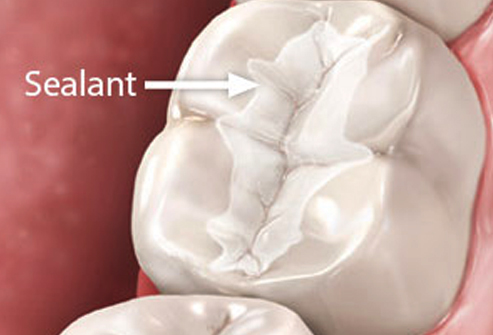 Sealants in Prince George | Accent Dental